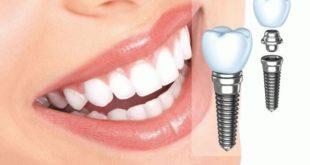 implantacija-zubov-5